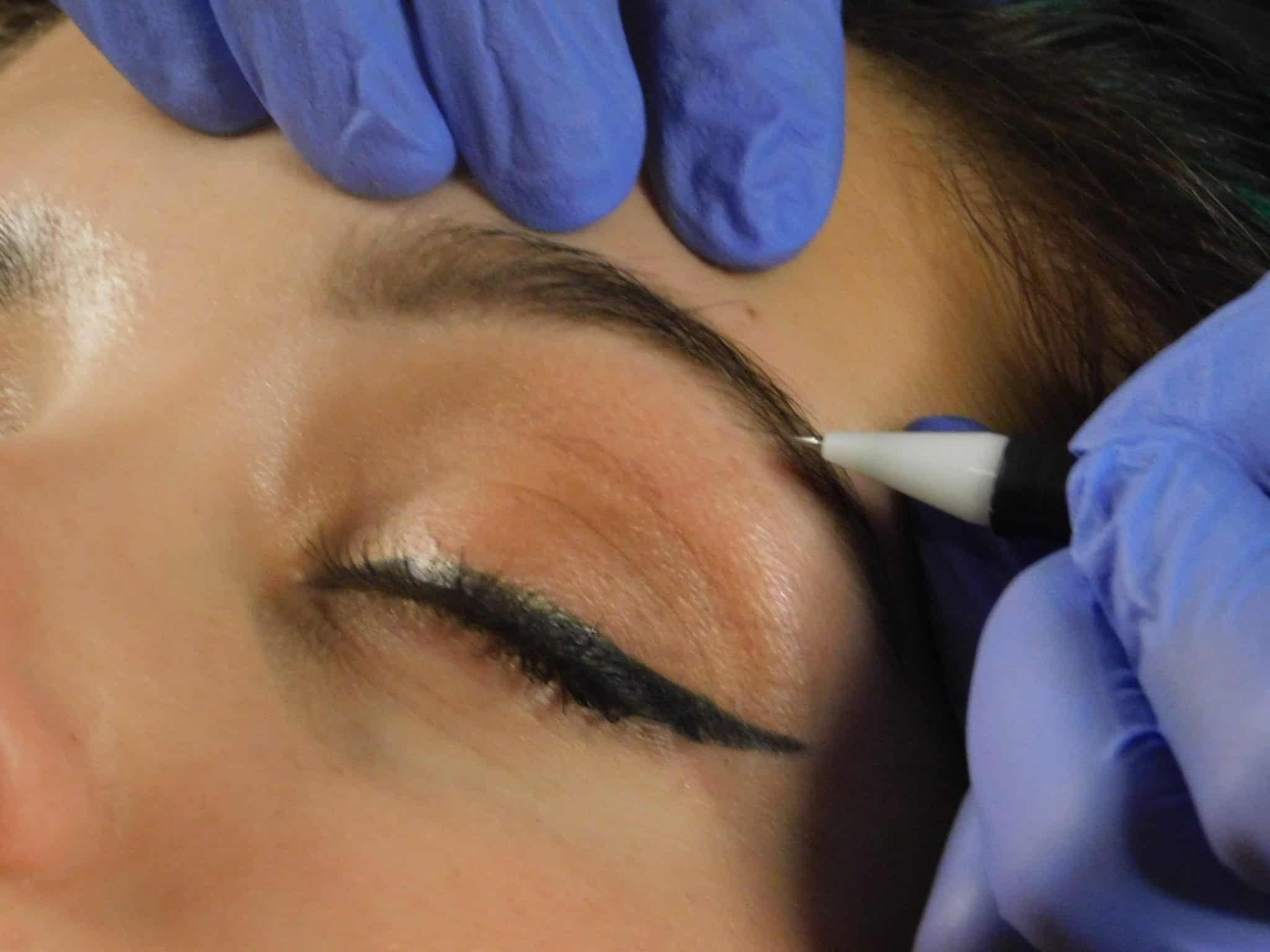 Electrolysis Facial Hair Removal PCOS